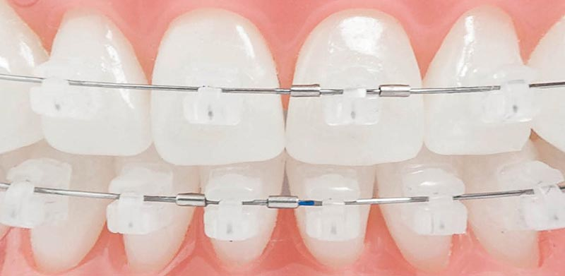 Brackets Transparente Damon Clear